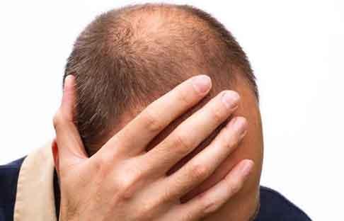 خرید و فروش لیزر دایود و الکساندرایت چگونه از ریزش زودرس موهای خودمان جلوگیری کنیم