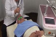 فیلم دستگاه لیزر کیوسوییچ خرید و فروش لیزر کیوسوئیچ پاک کردن تاتو و خالکوبی درمان لک