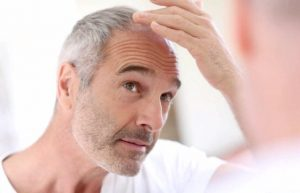 خرید و فروش لیزر دایود و الکساندرایت توصیه های جهت ریزش مو و روشی برای درمان بشناسیم