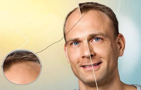 خرید و فروش لیزر دایود و الکساندرایت چه نکاتی لازم است درمورد جراحی پیوند مو بدانیم