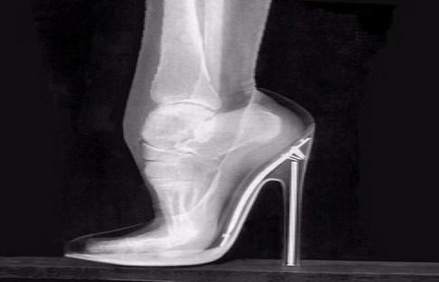 خرید و فروش لیزر دایود و الکساندرایت پوشیدن کفش پاشنه بلند چه عوارضی را میتواند ایجاد کند