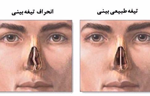 خرید و فروش لیزر دایود و الکساندرایت به چه روشی میتوان انحراف بینی را درمان کرد