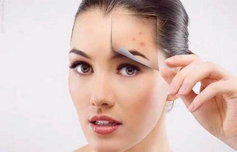 خرید و فروش لیزر دایود و الکساندرایت روش های مناسب جهت از بین بردن جوش صورت چیست