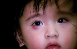خرید و فروش لیزر دایود و الکساندرایت علائم و راه های درمان گل مژه در کودک چیست