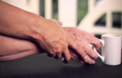 خرید و فروش لیزر دایود و الکساندرایت علائم و نشانه های شروع بیماری پارکینسون چیست