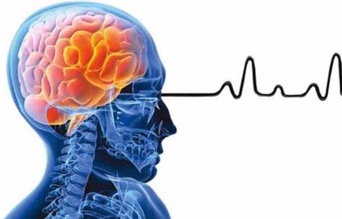 خرید و فروش لیزر دایود و الکساندرایت عوامل اصلی سکته مغزی چیست