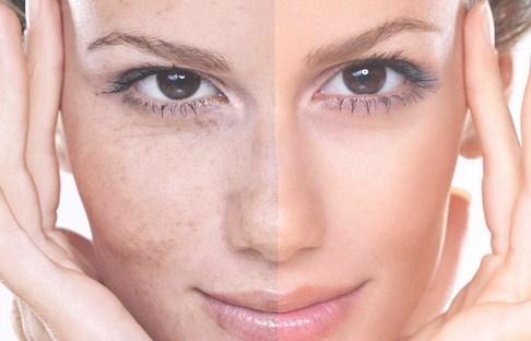 خرید و فروش لیزر دایود و الکساندرایت بهترین روش های جلوگیری از خشکی پوست چیست