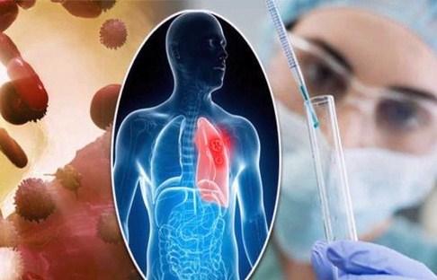خرید و فروش لیزر دایود و الکساندرایت مهمترین عوامل ایجاد سرطان ریه چیست