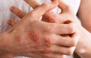 خرید و فروش لیزر دایود و الکساندرایت مهمترین علائم و دلایل قارچ پوستی چیست